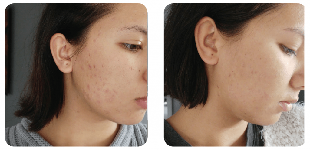 Rosehip Oil Before and Afters - Our Natural Skin Care Products | Kosmea