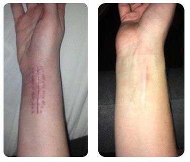 before and after rosehip oil on scar