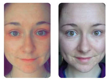 Rosehip Oil Before and Afters - Our Natural Skin Care