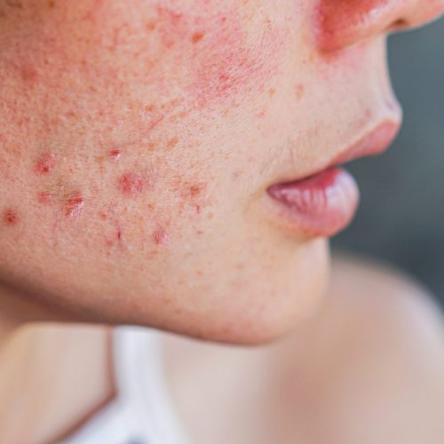 closeup acne on woman's face with rash skin ,scar and spot that allergic to cosmetics